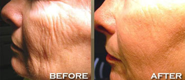 Reborn Skin Care Skin Rejuvenation