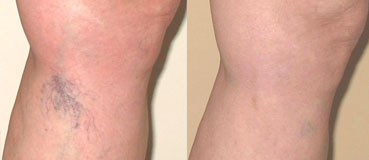 Reborn Skin Care Spider Vein Removal